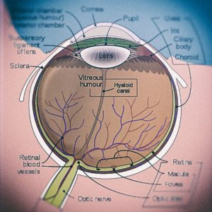 De oorzaak van glaucoom